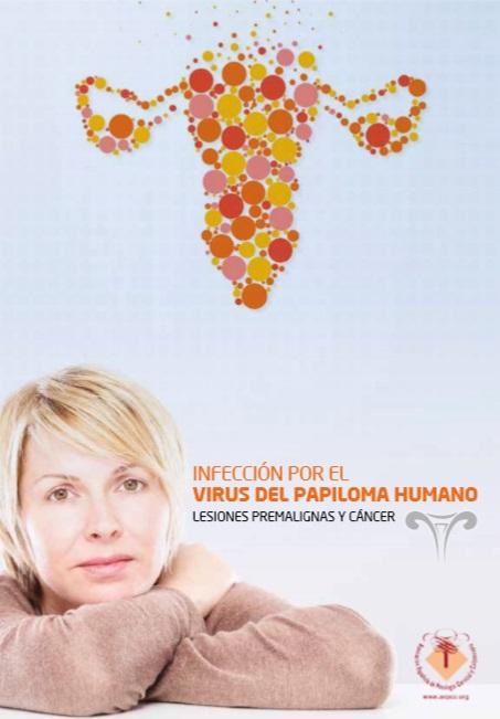 Infección por el virus del papiloma humano. L..